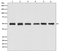 beta Tubulin Antibody (HRP conjugated)